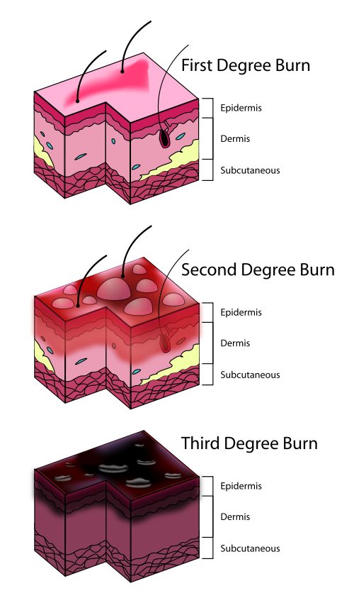 Levels of sunburns