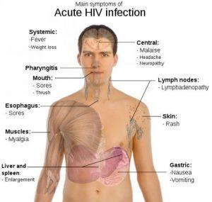 Acute HIV Diagram